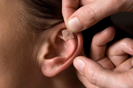 Ear Acupuncture - here using ear seeds ( tiny plant seeds mounted on adhesive tape) applied to Acupuncture points on the ears