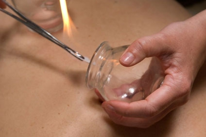 Cupping Therapy can be part of an Acupuncture treatment, and may be used to treat muscular skeletal problems