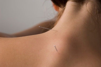 The extremely fine Acupuncture needles positioned for a patient
