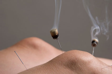 Moxabustion - or Moxa -  is a form of  heat treatment often combined with Acupuncture